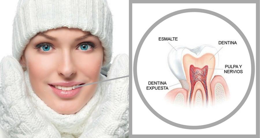 Sensibilidad dental- Quijote 21