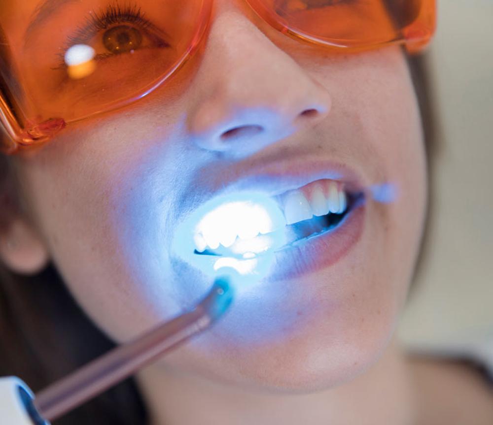 Laserterapia - Tecnología láser