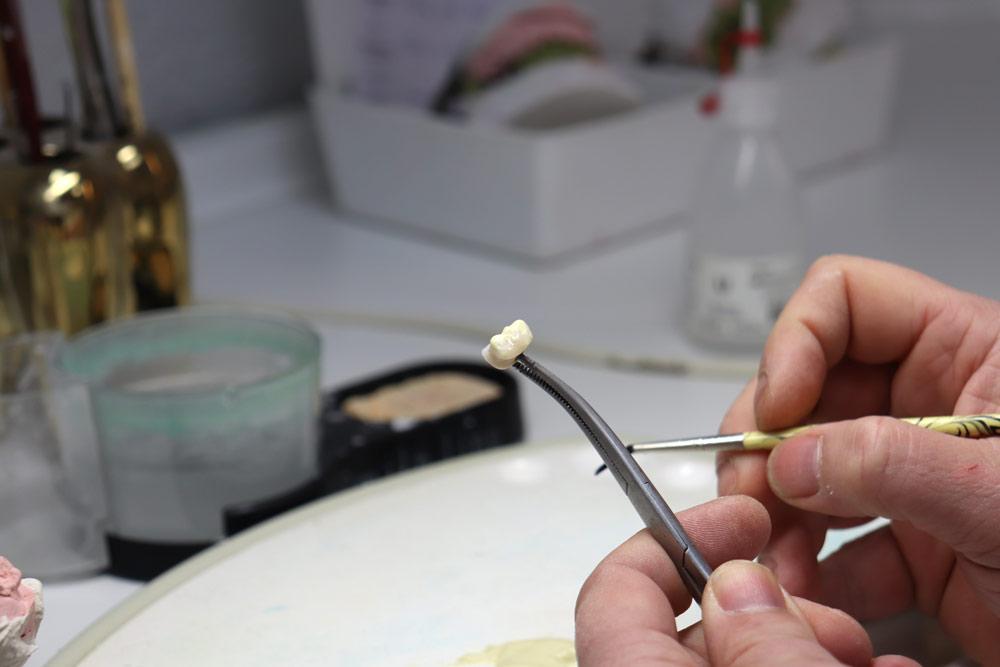 Centro-Dental-Quijote21--Laboratorio-protesico2